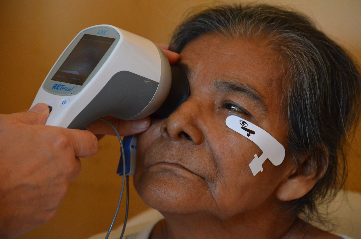 cause worldwide pin eyecare blinds eyesight leading blindness of cataracts visionloss cataract can